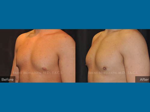 Gynecomastia procedure - Before and after picture of a patient side view