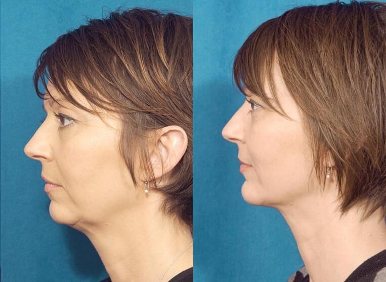 Neck lace before and after patient 4 case 3767 side view