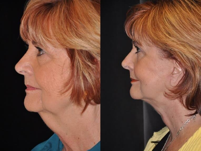 Neck lace before and after patient 7 case 3857 side view