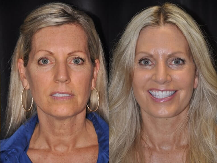 Facelift Before And After Patient 23 Case 3633 Front View