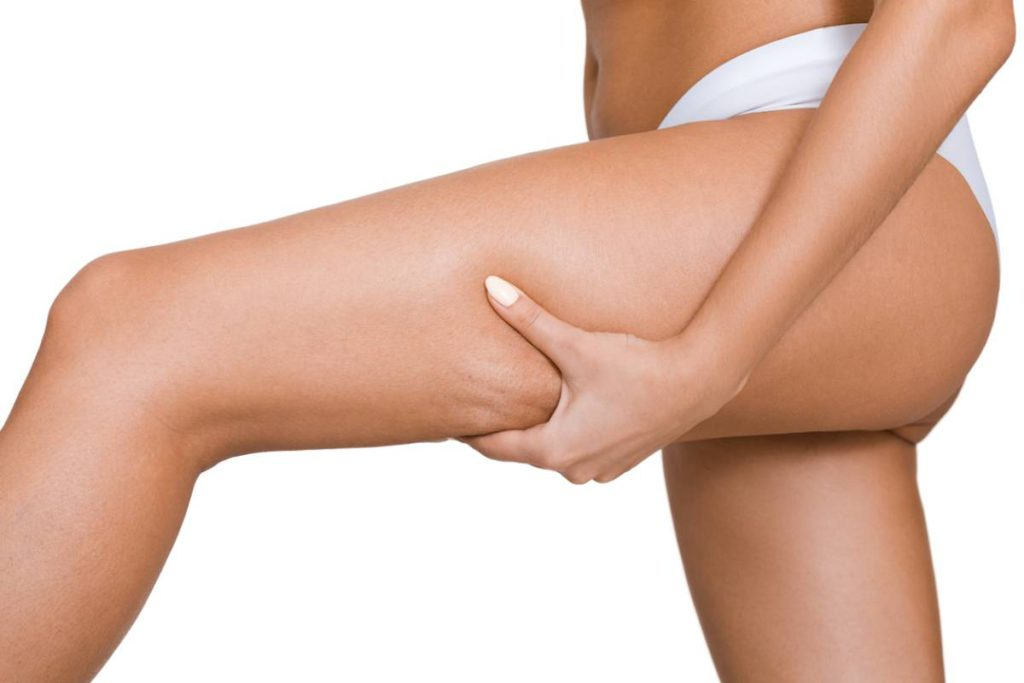 Can BodyTite Reduce Cellulite on Thighs? Stock Photo