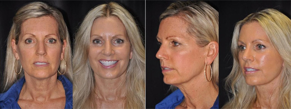 The Season of the 40-year-old Facelift Stock Photo