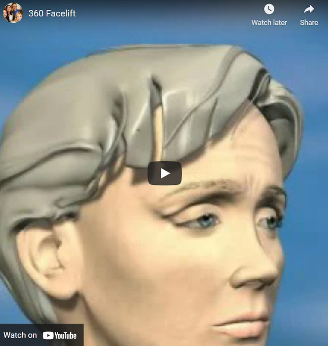 Image of 360 Facelift Click to See Video