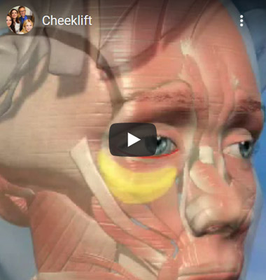 Image of Cheeklift Click to See Video