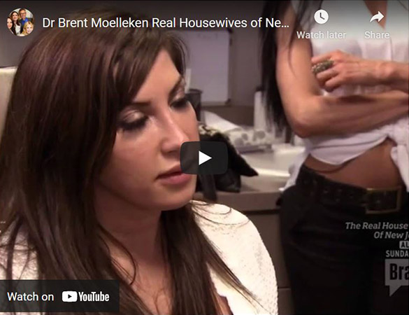 Image of Dr Brent Moelleken Real Housewives of New Jersey Click to See Video