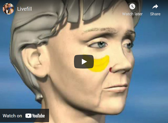 Image of Livefill Click to See Video