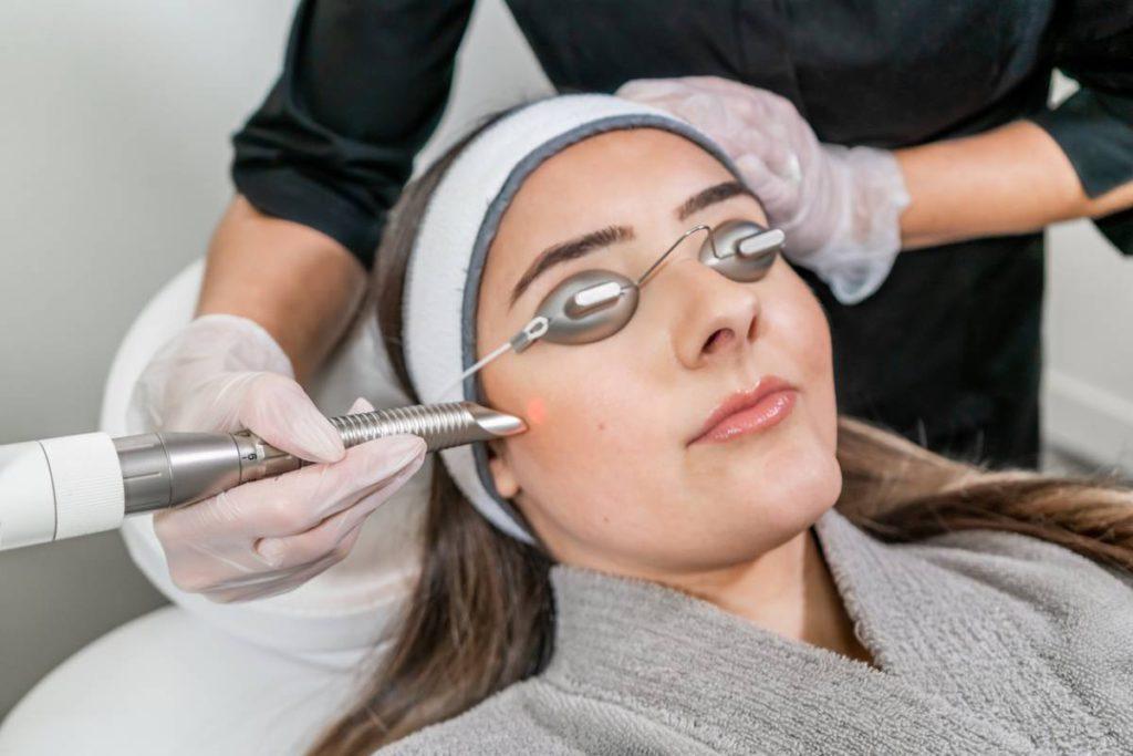 When Should I Start Laser Treatments? Stock Photo