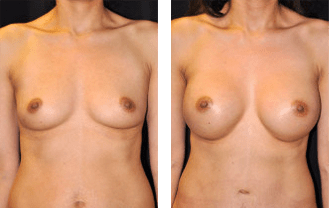 breast-gal1