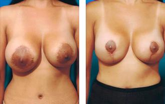 breast-gal3a